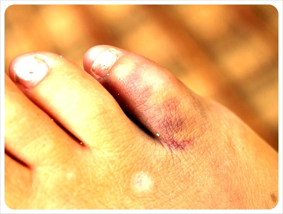 Jess broken toe
